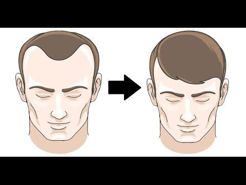 Hair Mask na may bitamina b6