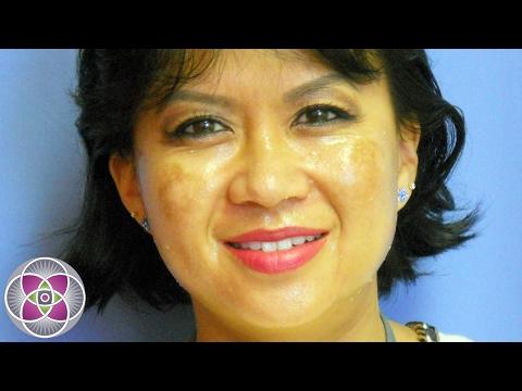 Nanaginip ako na may freckles