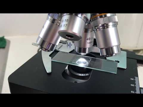 Respiratory papillomatosis testing