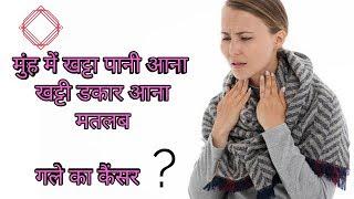 मुंह में खट्टा पानी आना, खट्टी डकार आना गले के कैंसर का संकेत,mouth Cancer Symptoms