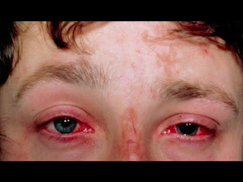 Video Integrative medicine for Xerophthalmia