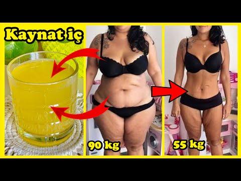 Operațiunea bariatrică pentru a pierde în greutate