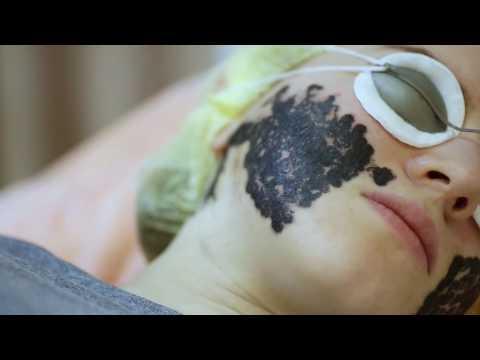Удаление пигментных пятен на лице в вологде