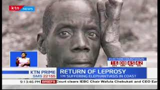 Leprosy reemerges in Kenyan with infections reports in Kwale and Kilifi