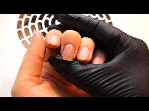 Itrakonasol die Instruktion über die Anwendung der Preis die Rezensionen von gribka der Nägel der Pr