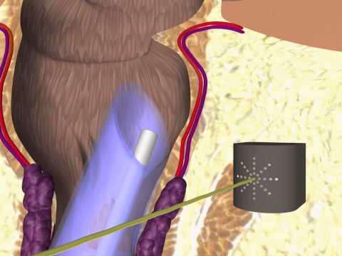 Θεραπεία αιμορροΐδων με laser HeLP - animation
