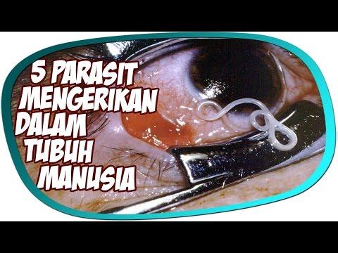 Die Parasiten im Darmkanal und der Leber die Symptome