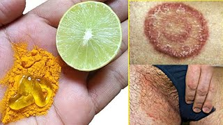 Home Remedies for Ringworm - How To Get Rid Of Ringworm Fast At Home