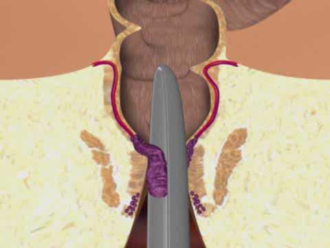 Leczenie hemoroidów Dr. Popov