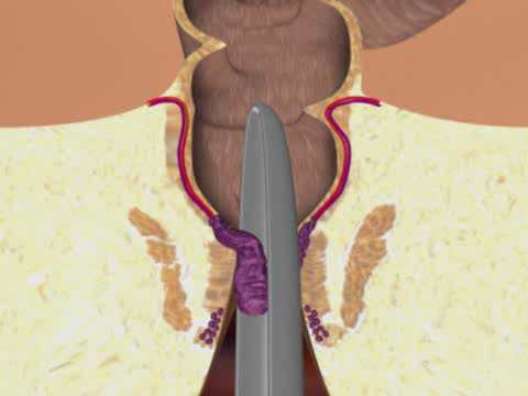 Dmuchawiec z hemoroidami