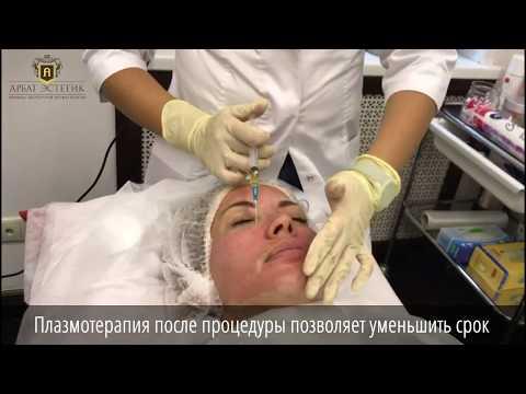 Мази против пигментных пятен на теле