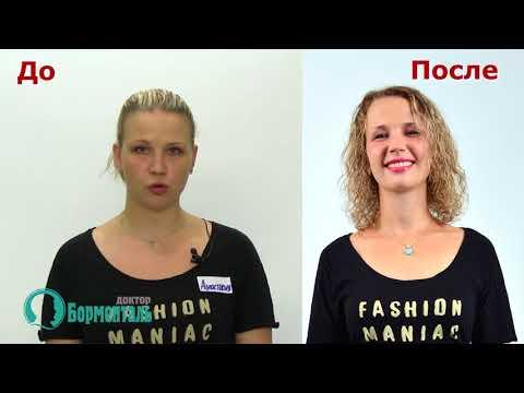 Санаторий для похудения ТЮРЬМА для ЖИРА отзыв участницы