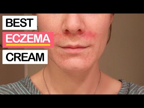 10 Best Eczema Creams 2019 | Best Products for Eczema, Rosacea, Psoriasis & Severe Dry Skin