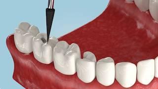 Какие есть виды протезирования зубов?
