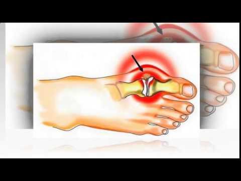 Как вылечить шишку на большом пальце стопы