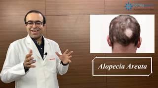 ALOPECIA AREATA Symptoms, Causes & Treatments | Dr Rohit Batra | Permanent Cure