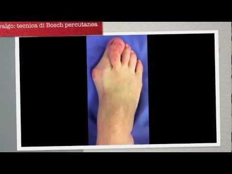 Deformacja stóp dziecka