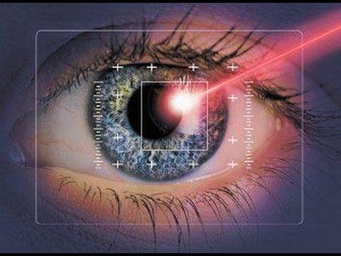 Больно ли делать коррекцию зрения лазером