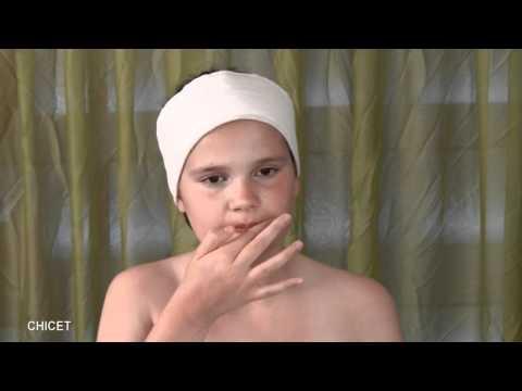 สมุนไพรสำหรับบุตรหลานของโรคสะเก็ดเงิน