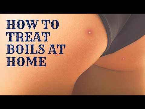 Video HOW TO TREAT BOILS AT HOME