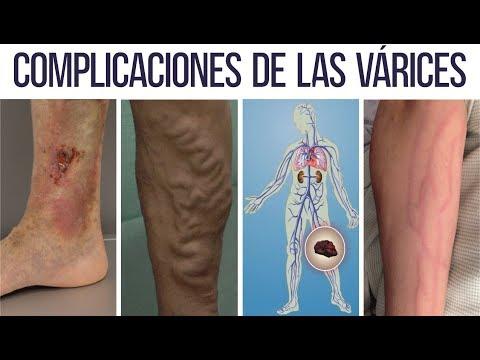 Acupunctura cu vene varicoase