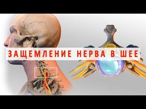 Как в комплексе лечить остеохондроз