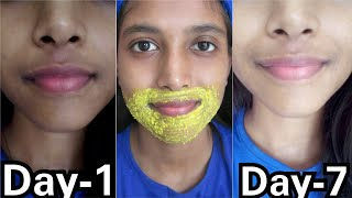 Remove Pigmentation, Dark patches Around Mouth  || 100% Result in 3 Use ||