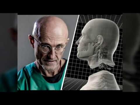 World's First Human Head Transplant A Success | Claims Controversial Scientist Sergio Canavero
