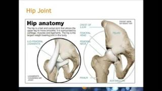 Nursing Home Staff Education - How to Care for a Hip Fracture Patient
