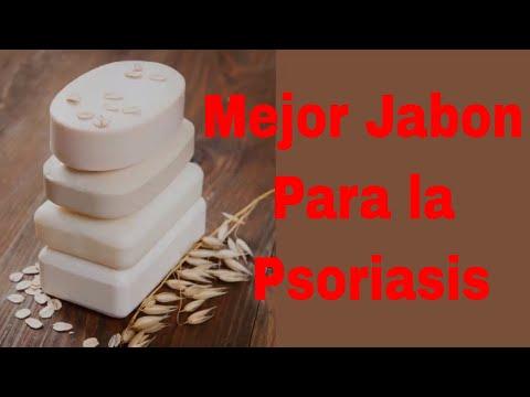 Quello che provoca la psoriasi e leczema
