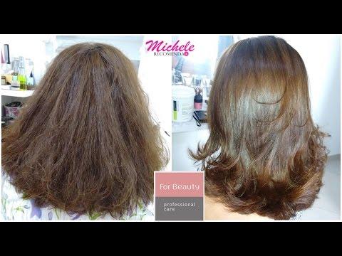 Gamot para sa pagpapagamot ng alopecia
