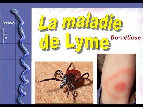 Atopitchesky la dermatite et les mollusques