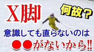 スキーで意識してもX脚が直らない原因は●●がないから