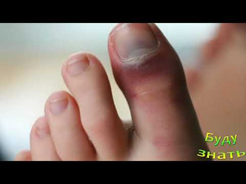 Ушиб большого пальца ноги... снять боль и отек...