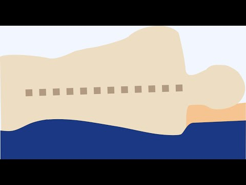 Die Kyphose pojasnitschnogo der Abteilung beim Kind 8 Monate