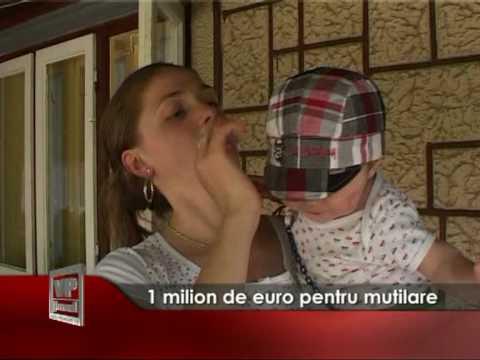 1 milion de euro pentru mutilare
