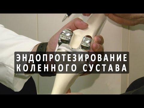 Внутрисуставная инъекция в коленный сустав отзывы