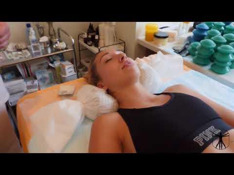Как вылечить плечелопаточный периартрит