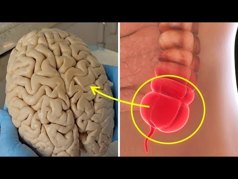 Dlaczego Ludzie Z Usuniętym Wyrostkiem Rzadziej Chorują Na Alzheimera? - Naukowe Dowody