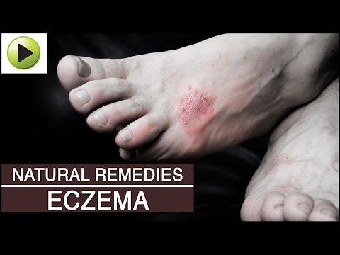 Mescolanza a dermatite atopic al bimbo