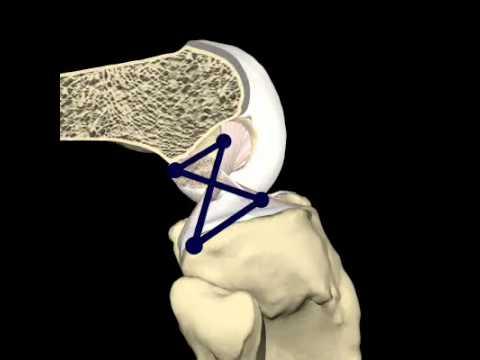 Come trattare le articolazioni sinovite