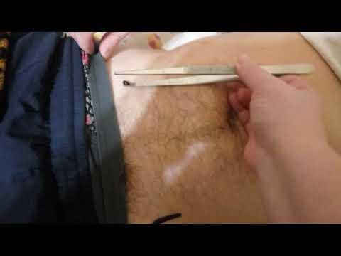 Прибор дюна от простатита