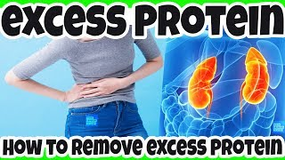 REMOVE Excess Protein In Your Urine - TIPS for CKD Patients to Reduce PROTEIN In Urine