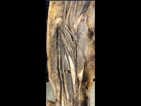 Dureri severe la nivelul articulației cotului stâng provoacă