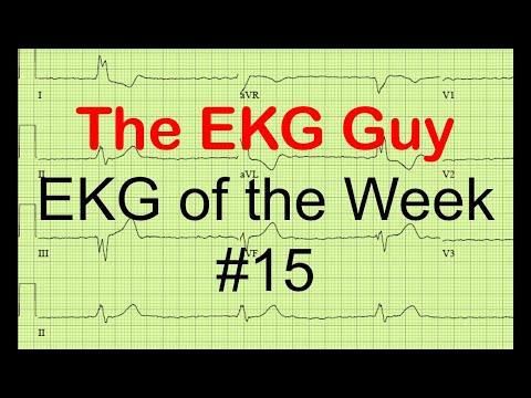 EKG of the Week #15