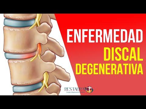Dolor en el intestino da el derecho de la parte posterior