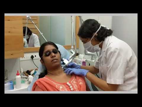 Laser Skin Resurfacing For Treating Acne
