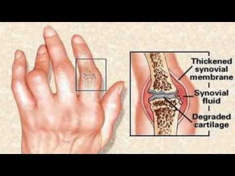 Dientes frontal inferior dolor y el cuello