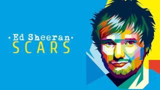 Ed Sheeran - Scars (New Song 2017)