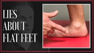 The Big Lie About Flat Feet & Custom Arch Support! (Updated)